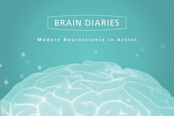 Brain Diaries exhibition